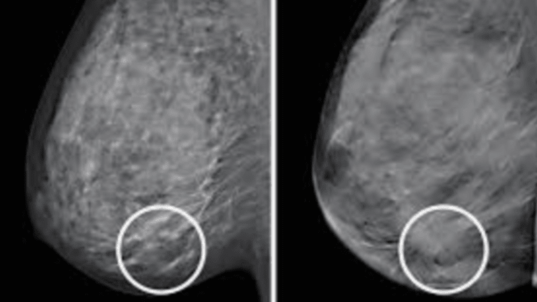 3D Breast-Imaging Technique May Reduce Unnecessary Biopsies